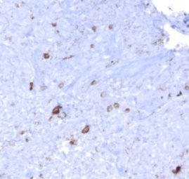 Immunohistochemistry (Formalin/PFA-fixed paraffin-embedded sections) - Anti-EBV Latent Membrane Protein antibody [CS1, CS2, CS3, CS4], prediluted (ab7502)