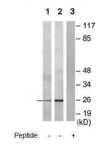 Western blot - TM4SF3 antibody (ab70007)