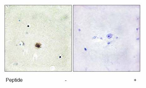 Immunohistochemistry (Formalin/PFA-fixed paraffin-embedded sections) - CSRP1 antibody (ab70010)