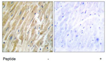 Immunohistochemistry (Formalin/PFA-fixed paraffin-embedded sections) - Calreticulin antibody (ab70013)