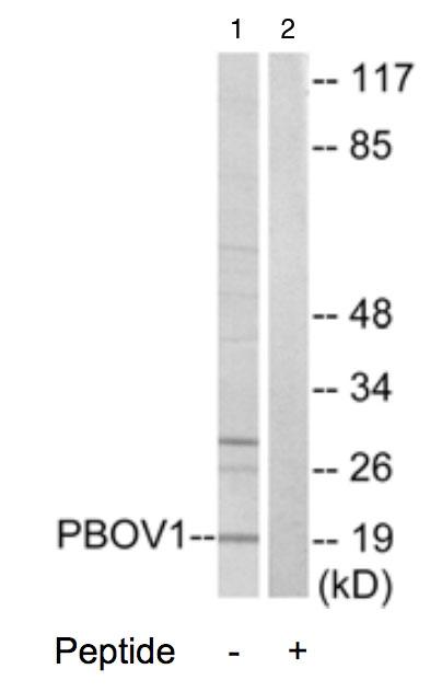 Western blot - PBOV1 antibody (ab70018)