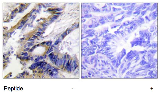 Immunohistochemistry (Formalin/PFA-fixed paraffin-embedded sections) - ILKAP antibody (ab70019)
