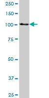 Western blot - HSPA4 antibody (ab70021)