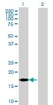 Western blot - IFNA5 antibody (ab70022)