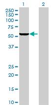 Western blot - IFIT1 antibody (ab70023)