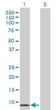 Western blot - Histatin 1 antibody (ab70024)