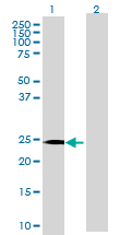 Western blot - Interferon alpha 6 antibody (ab70026)