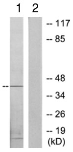 Western blot - PKA regulatory subunit I beta antibody (ab70028)