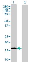 Western blot - Interferon alpha 8 antibody (ab70031)