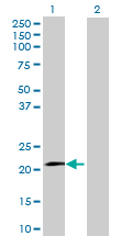 Western blot - Interferon alpha10 antibody (ab70033)