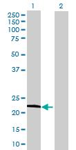 Western blot - IFNA21 antibody (ab70034)