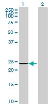 Western blot - IFNA13 antibody (ab70035)