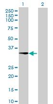 Western blot - DHRS1 antibody (ab70036)
