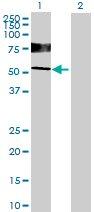 Western blot - IGHD antibody (ab70040)