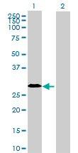 Western blot - IGLC2 antibody (ab70044)