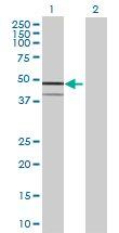 Western blot - INPP1 antibody (ab70046)