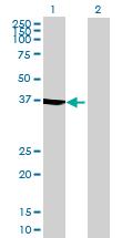 Western blot - IVD antibody (ab70049)