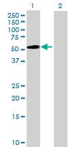 Western blot - KRT34 antibody (ab70050)