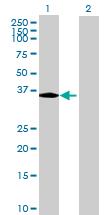 Western blot - GLB1L3 antibody (ab70051)