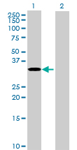 Western blot - RPUSD1 antibody (ab70052)