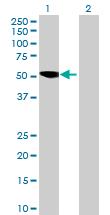 Western blot - KLHL29 antibody (ab70055)