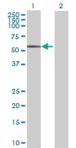 Western blot - FCRL1 antibody (ab70057)