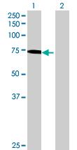 Western blot - GBP4 antibody (ab70058)