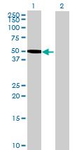 Western blot - ZNF689 antibody (ab70059)