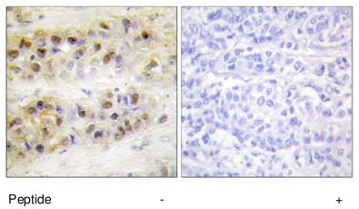 Immunohistochemistry (Formalin/PFA-fixed paraffin-embedded sections) - ROR alpha antibody (ab70061)