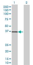 Western blot - LPGAT1 antibody (ab70076)