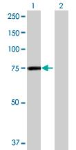 Western blot - GFPT2 antibody (ab70078)