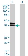 Western blot - HS3ST1 antibody (ab70080)