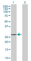 Western blot - HCCS antibody (ab70081)