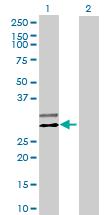 Western blot - C20orf71 antibody (ab70082)