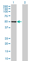Western blot - HGD antibody (ab70084)