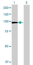 Western blot - HLCS antibody (ab70085)