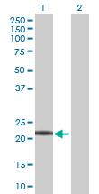 Western blot - LOC129530 antibody (ab70086)