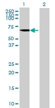 Western blot - FLJ31438 antibody (ab70088)