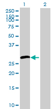 Western blot - HSD17B3 antibody (ab70089)