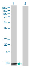 Western blot - DNAJC19 antibody (ab70092)