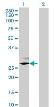Western blot - RNASE11 antibody (ab70097)