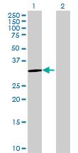 Western blot - MTFMT antibody (ab70100)