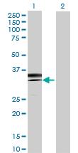 Western blot - Acyl-coenzyme A Thioesterase 8 antibody (ab70104)