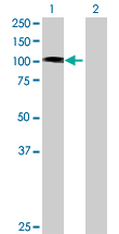 Western blot - TROAP antibody (ab70105)