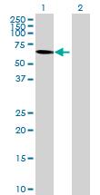 Western blot - PARP3 antibody (ab70140)