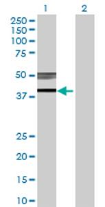 Western blot - B3GNT3 antibody (ab70156)