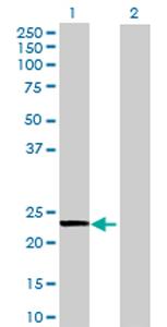Western blot - WARS2 antibody (ab70157)