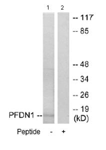 Western blot - PFDN1 antibody (ab70176)