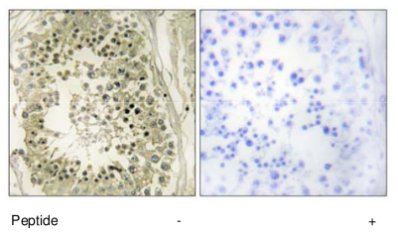 Immunohistochemistry (Formalin/PFA-fixed paraffin-embedded sections) - HGS antibody (ab70180)