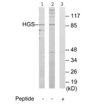 Western blot - HGS antibody (ab70180)